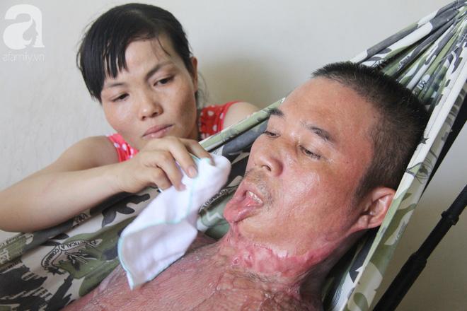 Bị điện giật cháy người không có tiền chạy chữa, bố xót xa nhìn con trai 4 tuổi không nhận ra mình - Ảnh 6.