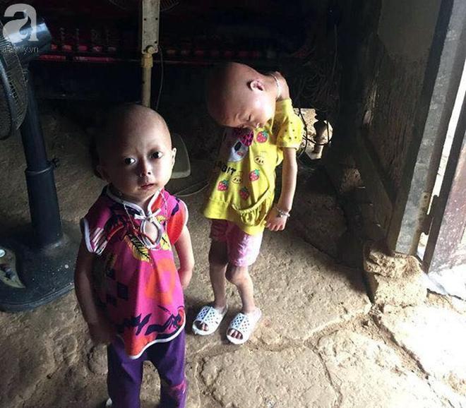 Tuyên Quang: 2 chị em gái mắc bệnh lạ khiến đầu, cổ bị nghẹo tựa người ngoài hành tinh khiến ai nhìn cũng xót xa - Ảnh 3.