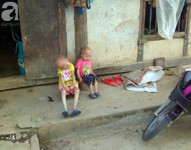 Tuyên Quang: 2 chị em gái mắc bệnh lạ khiến đầu, cổ bị nghẹo tựa người ngoài hành tinh khiến ai nhìn cũng xót xa - Ảnh 8.