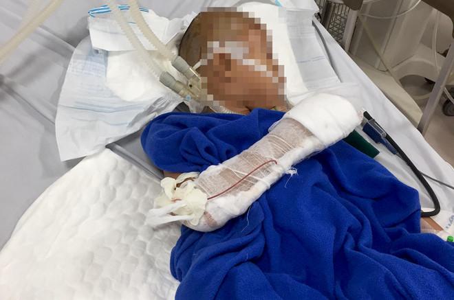 Khởi tố kẻ nghi ngáo đá chém lún sọ bé trai 10 tuổi rồi cầm dao hăm dọa nhiều người 2