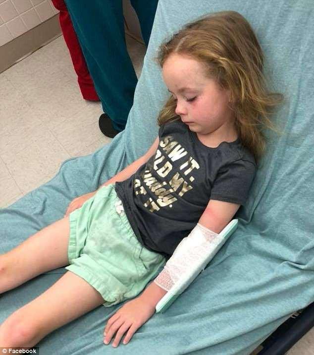 Chỉ vì một vết côn trùng cắn nhỏ xíu trên đầu, bé 5 tuổi bị liệt và không thể nói suốt 12 giờ 1