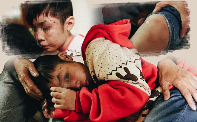Cuộc sống của bé trai 10 tuổi bị bố và mẹ kế bạo hành đến rạn sọ não ở Hà Nội giờ ra sao? 1