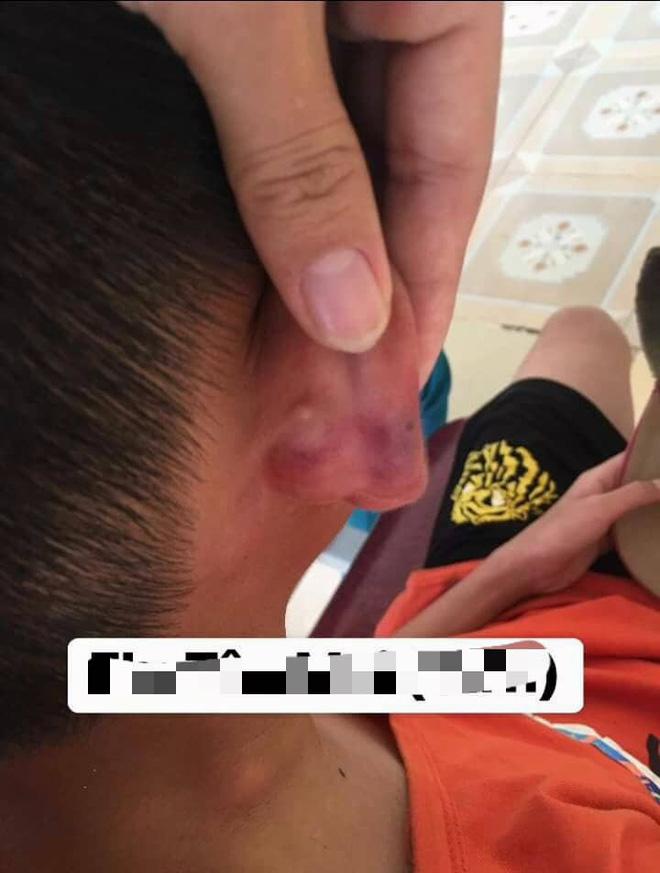 Xác minh thông tin bé trai 12 tuổi bị mẹ kế đánh đập tàn nhẫn phải nhập viện ở Nghệ An 2