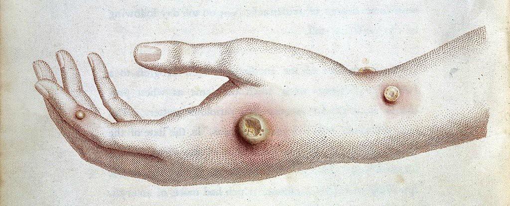 Cậu bé đột nhiên mắc phải căn bệnh lạ tưởng đã tuyệt chủng từ thế kỷ 18 - Ảnh 1.