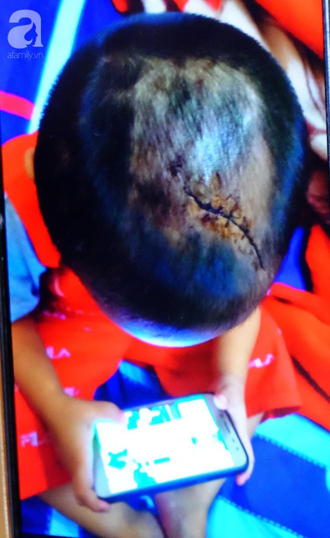 Bà ngoại bé 3 tuổi nghi bị mẹ ruột và cha dượng bạo hành ở Bình Dương: 'Tôi sợ nó điên lên lại đánh chết thằng bé' 5