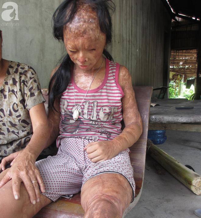 Bé gái bị tạt axit năm 7 tuổi vì mẹ