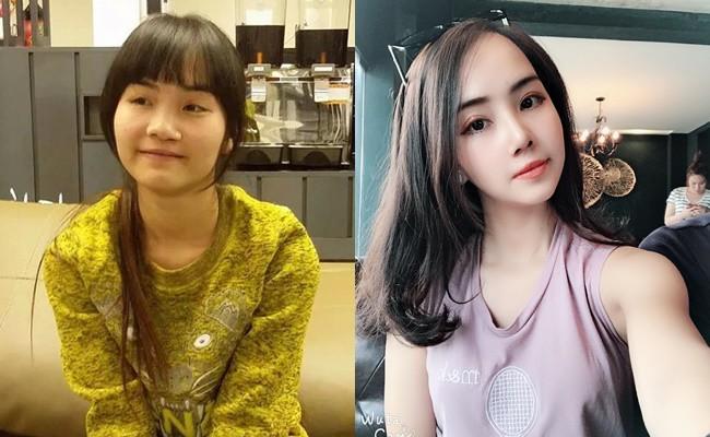 Từng bị bạn bè cầm chổi ném vì xấu xí, cô gái Hà Nội lột xác sau phẫu thuật thẩm mỹ lại lấy được chồng như ý 1
