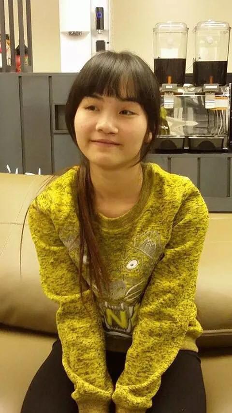 Từng bị bạn bè cầm chổi ném vì xấu xí, cô gái Hà Nội hở hàm ếch lột xác, đổi đời sau phẫu thuật thẩm mỹ 3