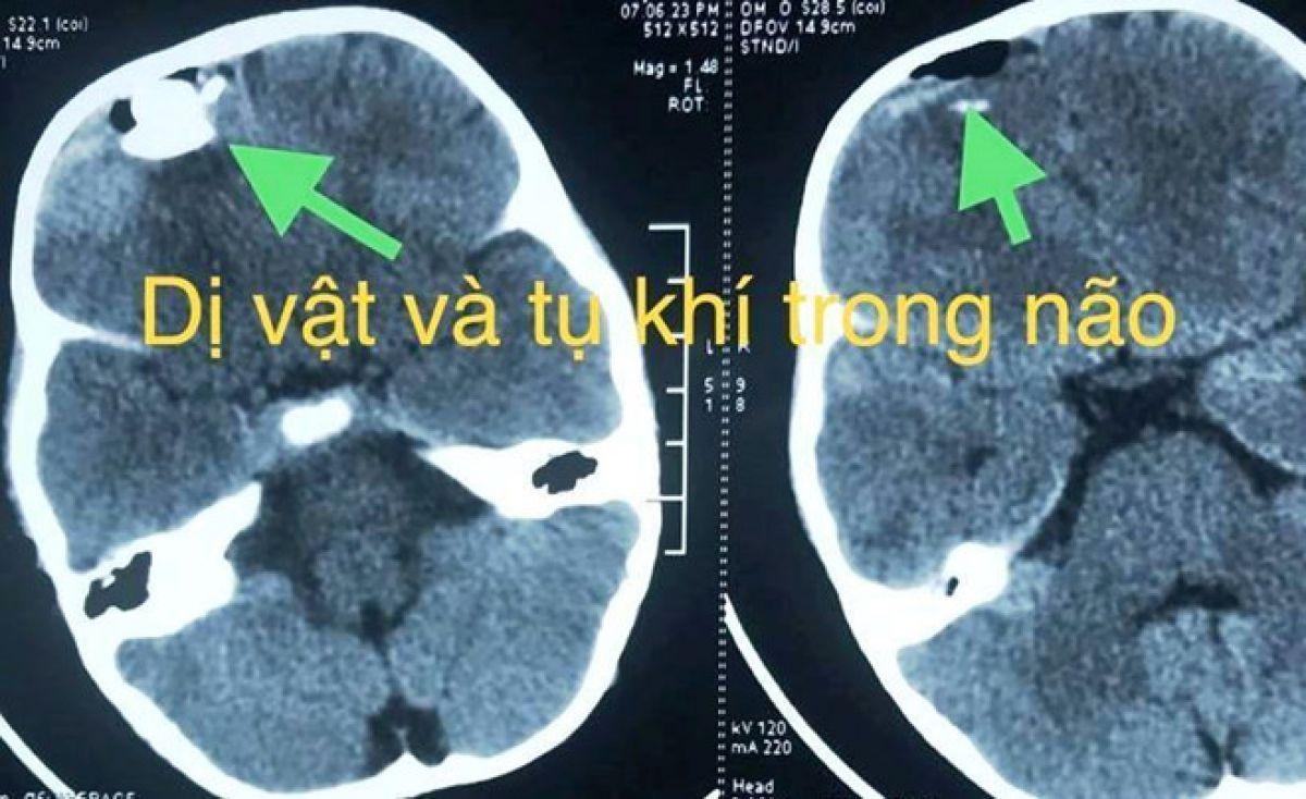 Nghịch súng tự chế, bé trai bị chấn thương sọ não 1