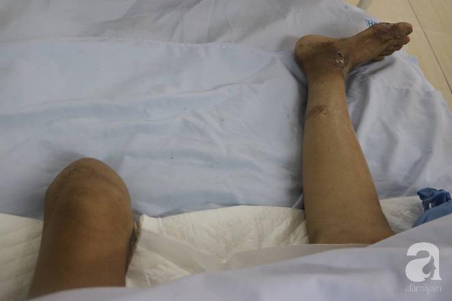 Bán nhà cho con cưới vợ, bà mẹ nghèo bị tai nạn giao thông không tiền chữa trị phải cắt cụt chân hiện đang lâm nguy 2