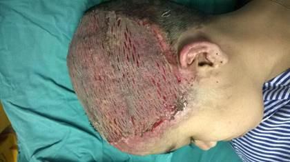 Thiếu nữ 17 tuổi lột hết da đầu sau khi uốn tóc mừng sinh nhật 1