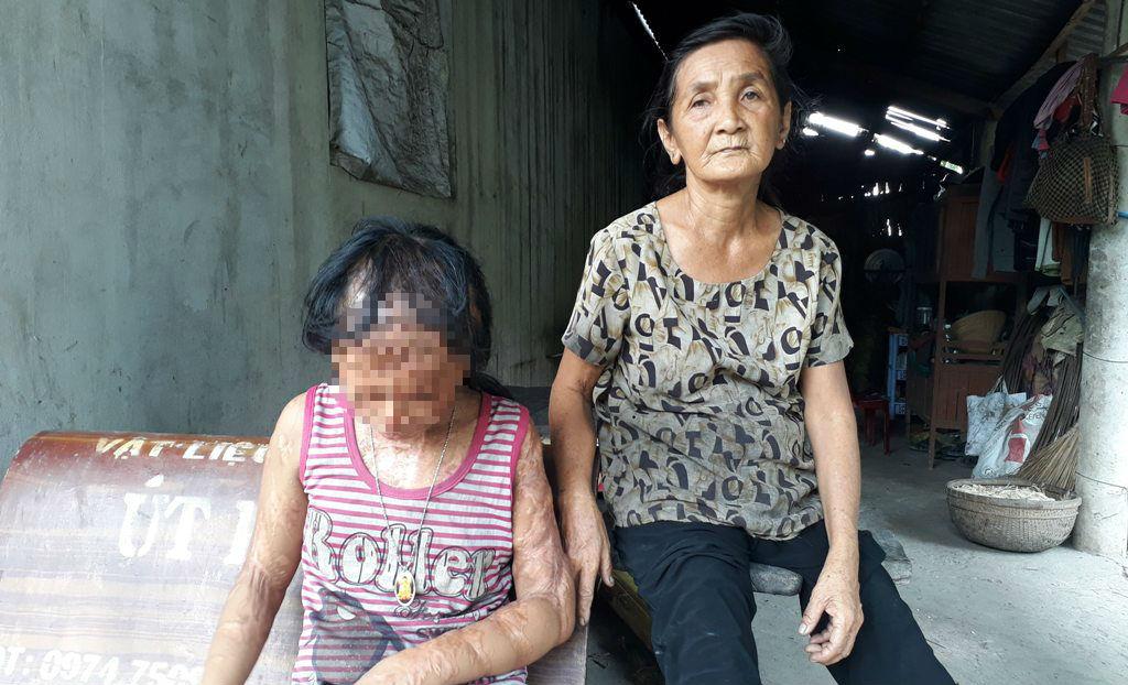 Gia đình tử tù Nguyễn Hữu Tình lên tiếng vụ xin đôi mắt cho bé gái bị tạt axít 1