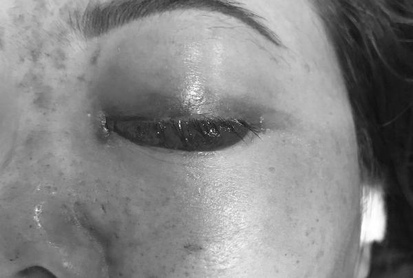 Hình ảnh Tiêm filler nâng mũi: Thêm một nạn nhân ở Sài Gòn mù mắt số 1