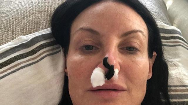 Hy hữu: Nhờ đỉa hút máu, cứu được chiếc mũi phẫu thuật thẩm mỹ hỏng 1