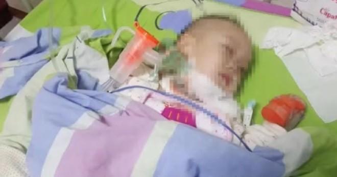 Đưa con trai 2 tuổi vào bệnh viện gắp miếng táo hóc trong cổ họng, hơn 1 tháng sau cặp vợ chồng sững sờ nghe tin con nhiễm HIV 3