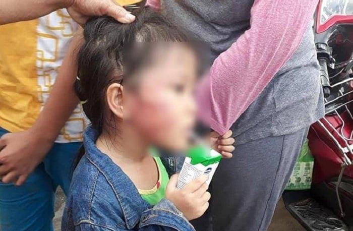 Bảo mẫu bạo hành bé gái 5 tuổi có bị xử lý hình sự? 1