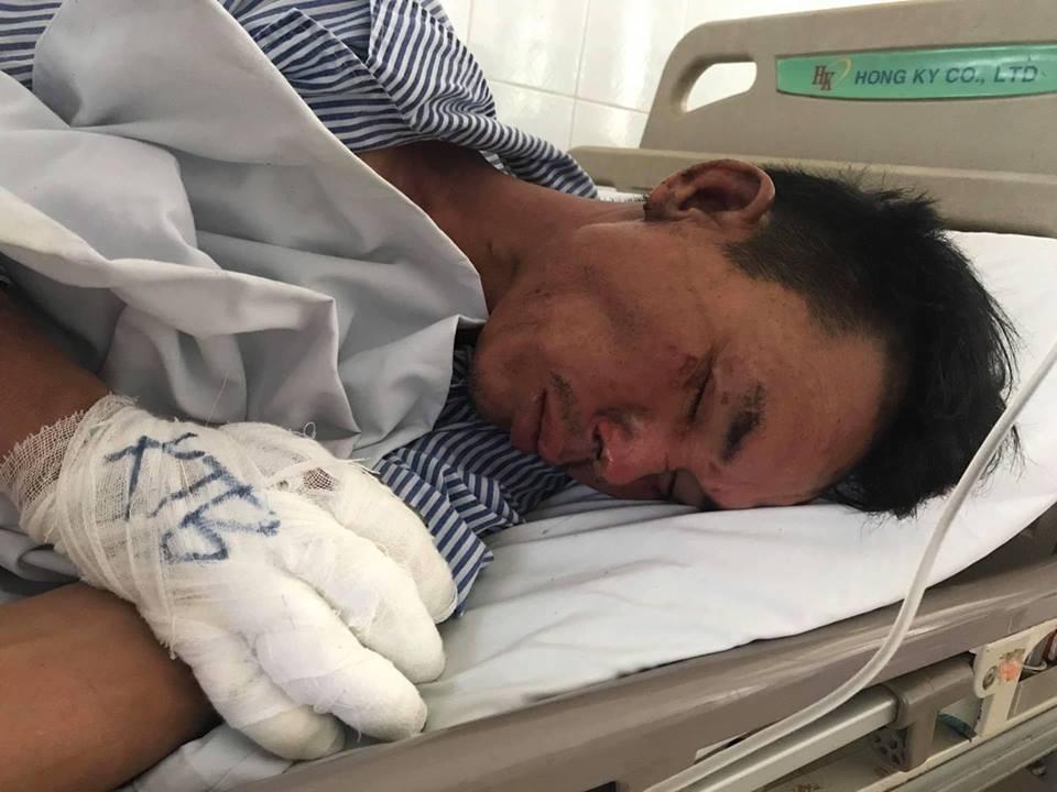 Hé lộ nguyên nhân rể cũ mang xăng đốt nhà và đâm bố vợ bị thương ở Hà Nội 1