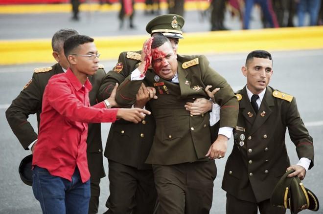 7 ngày qua ảnh: Binh sĩ đổ máu trong vụ ám sát hụt Tổng thống Venezuela 5