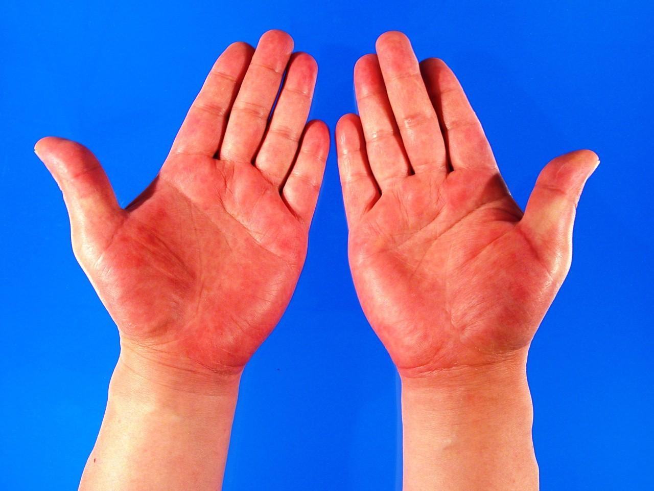 7 dấu hiệu chứng tỏ bạn không những già trước tuổi mà còn đang có bệnh - Ảnh 7.