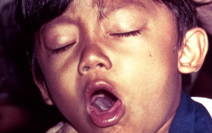 Hạt chôm chôm - Lại thêm 1 hung thần khiến bé trai 7 tuổi hóc nghẹn và mất mạng - Ảnh 2.