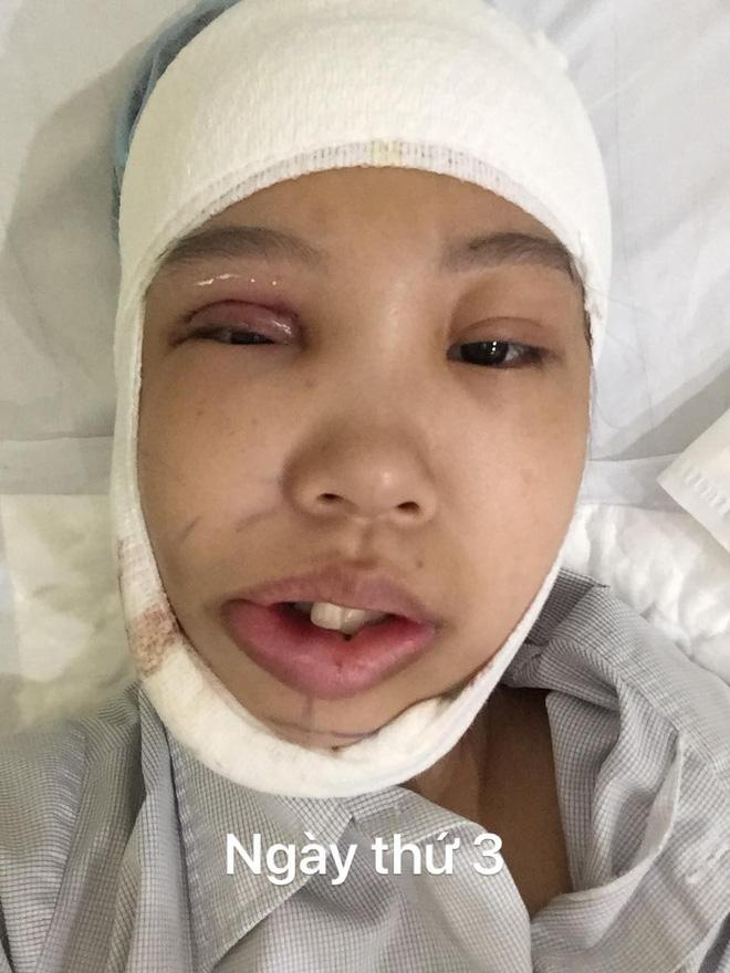 Hình ảnh Bị bạn bè trêu chọc vì teo nửa bên mặt, cô gái Hà Nội lột xác sau phẫu thuật thẩm mỹ số 3