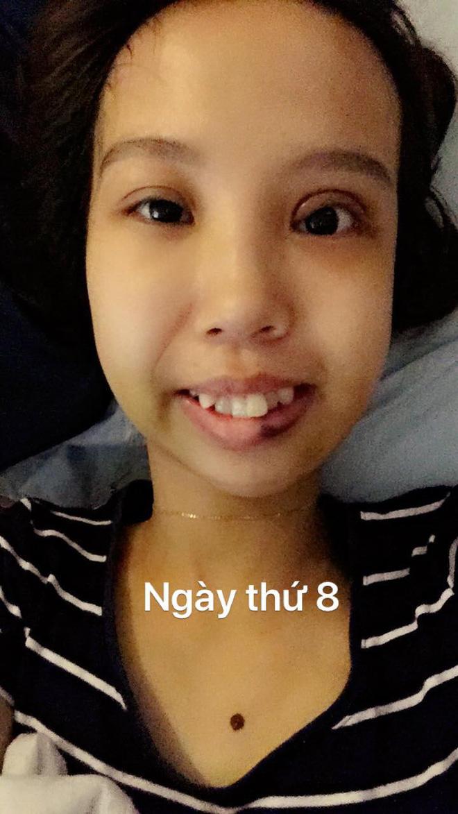 Hình ảnh Bị bạn bè trêu chọc vì teo nửa bên mặt, cô gái Hà Nội lột xác sau phẫu thuật thẩm mỹ số 6