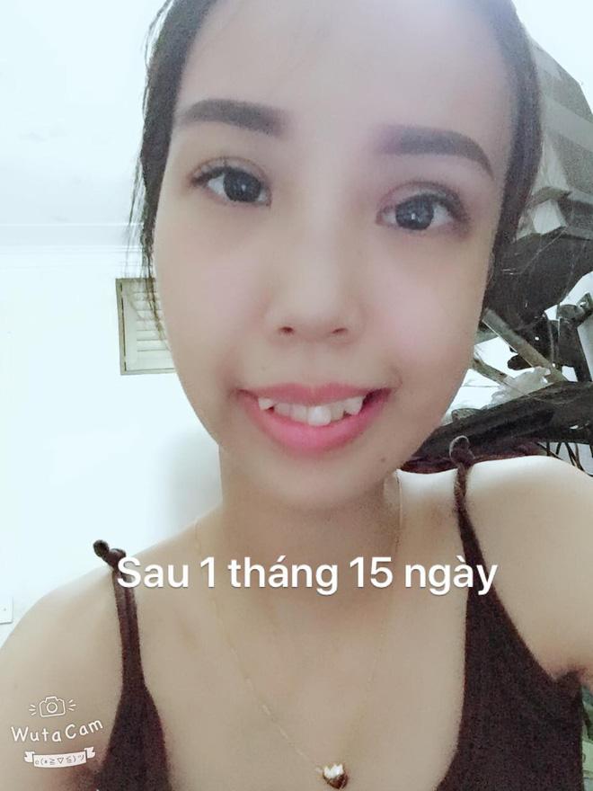 Hình ảnh Bị bạn bè trêu chọc vì teo nửa bên mặt, cô gái Hà Nội lột xác sau phẫu thuật thẩm mỹ số 9