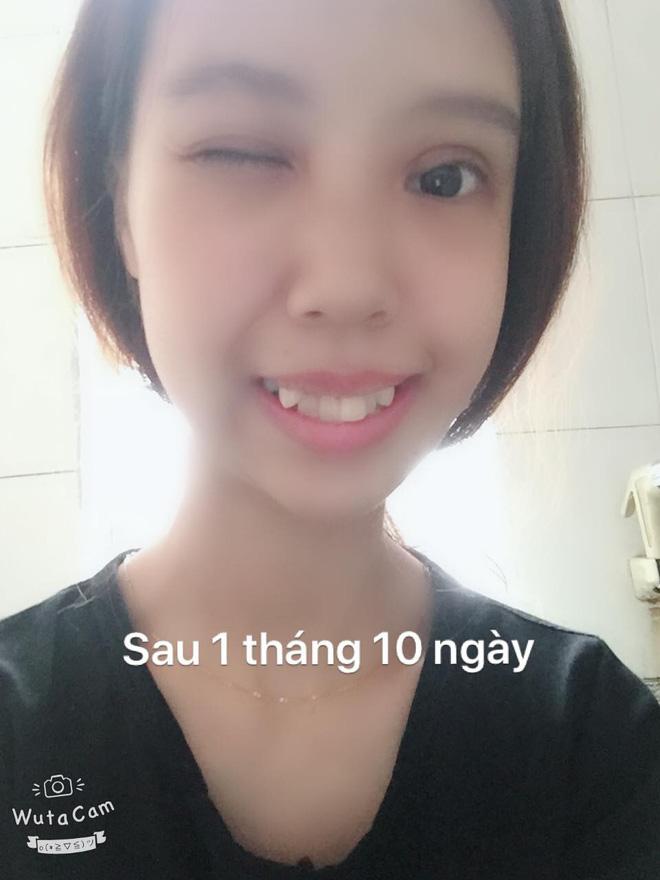 Hình ảnh Bị bạn bè trêu chọc vì teo nửa bên mặt, cô gái Hà Nội lột xác sau phẫu thuật thẩm mỹ số 8