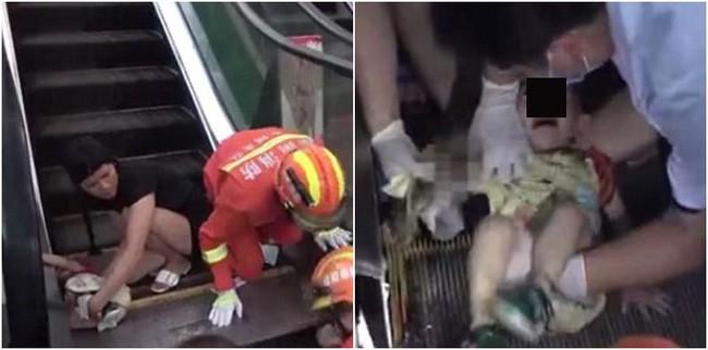 Không cẩn thận khi đi thang cuốn, bé 1 tuổi bị nuốt trọn cánh tay trong vụ tai nạn kinh hoàng 2