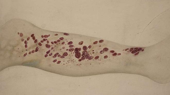 Căn bệnh bí ẩn từng giết hàng loạt hải tặc vào thế kỷ 18 đang dần xuất hiện 1
