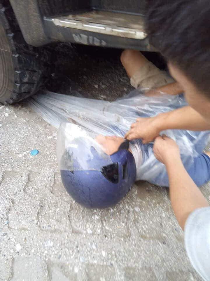 Lào Cai: Người đàn ông may mắn sống sót kỳ diệu sau khi bị xe ben kéo lê 10m dưới gầm 3
