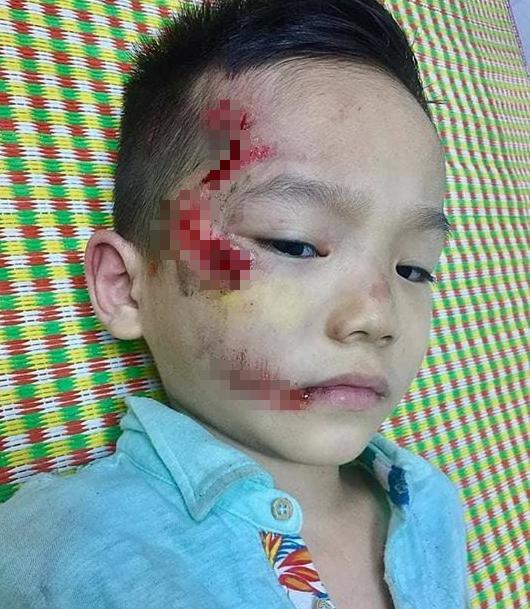 Mẹ trẻ tố y tá ngồi buôn điện thoại, bỏ mặc con trai bị thương vì không kịp mang tiền đóng viện phí 2