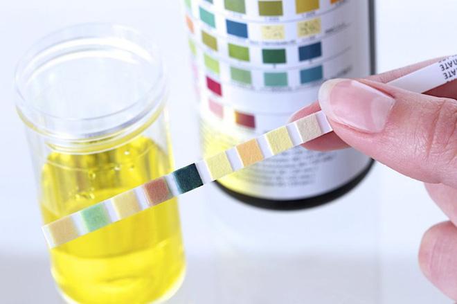 10 bí mật về nước tiểu liên quan đến thận, sức khỏe: Ai cũng nên biết rõ để phòng bệnh tốt 6