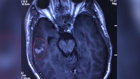 Hình ảnh Kinh hãi sán dây dài 10cm chui trong não thanh niên mê đồ nướng số 1