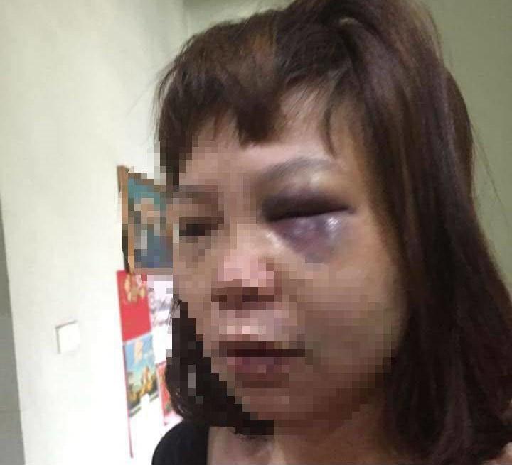 Bắt tạm giam, khởi tố người chồng đưa vợ lên đồi vắng bạo hành dã man 1