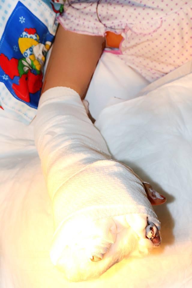 Hình ảnh Bé gái dập nát toàn bộ bàn tay do bị xe container kéo lê trên đường số 2