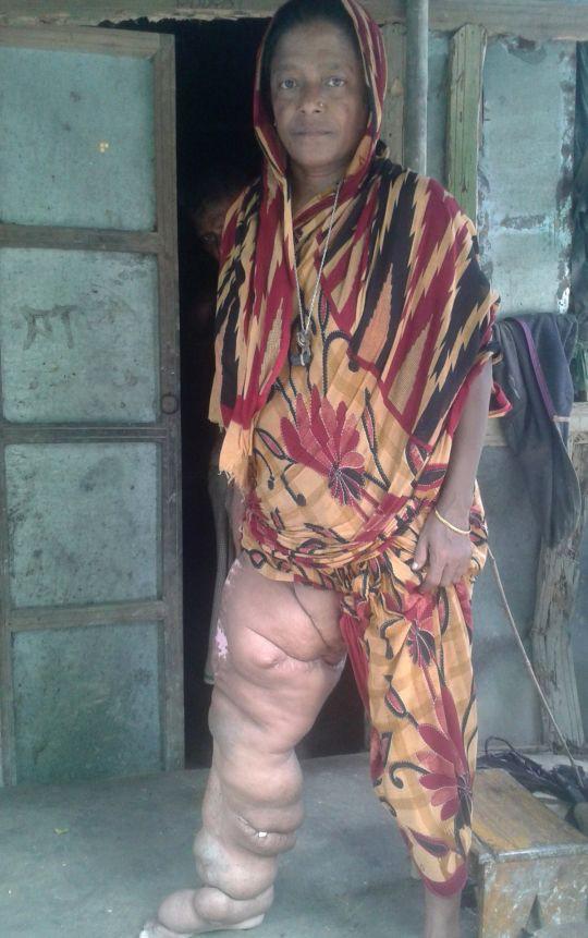 Chân bị biến dạng nặng gần 60 kg khiến người phụ nữ không thể cử động suốt 18 năm 1