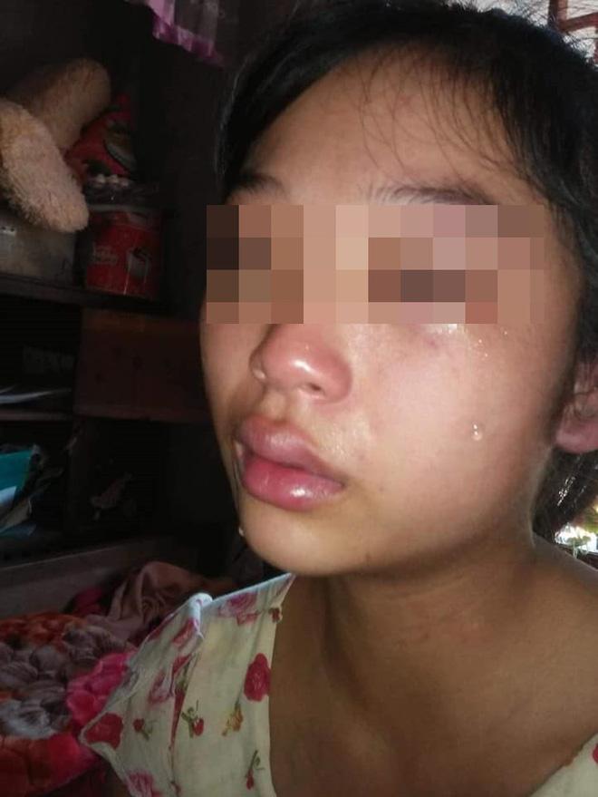 Vợ 16 tuổi lên MXH tố chồng bạo hành từ lúc mang thai: Công an Quảng Bình vào cuộc 3