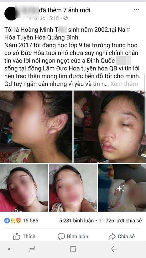 Vợ 16 tuổi lên MXH tố chồng bạo hành từ lúc mang thai: Công an Quảng Bình vào cuộc 2