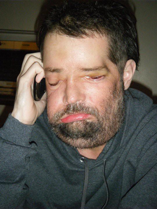 Bị điện giật mất cả khuôn mặt, con gái hốt hoảng không nhận ra cha nhưng 10 năm sau ai cũng bất ngờ khi gặp lại người đàn ông ấy 5