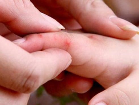 Hơn 60.000 ca mắc tay chân miệng, nguy cơ dịch chồng dịch 1