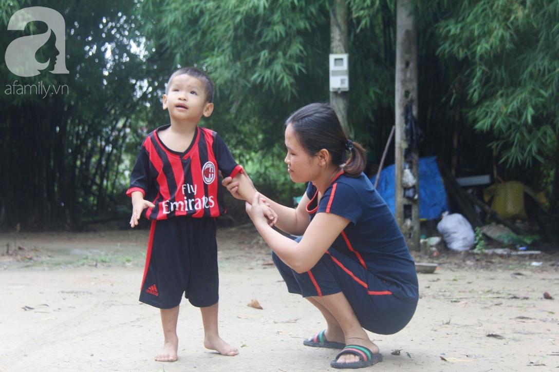 Bé trai 4 tuổi bị mù một bên mắt ngây ngô hỏi mẹ: