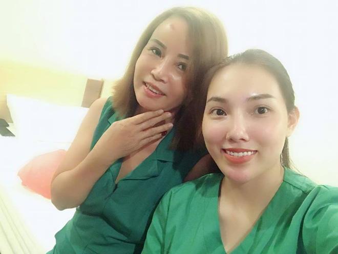 Cô dâu 62 tuổi đăng ảnh mới nhất sau phẫu thuật, chồng trẻ hoàn toàn ủng hộ chuyện làm đẹp của vợ 6