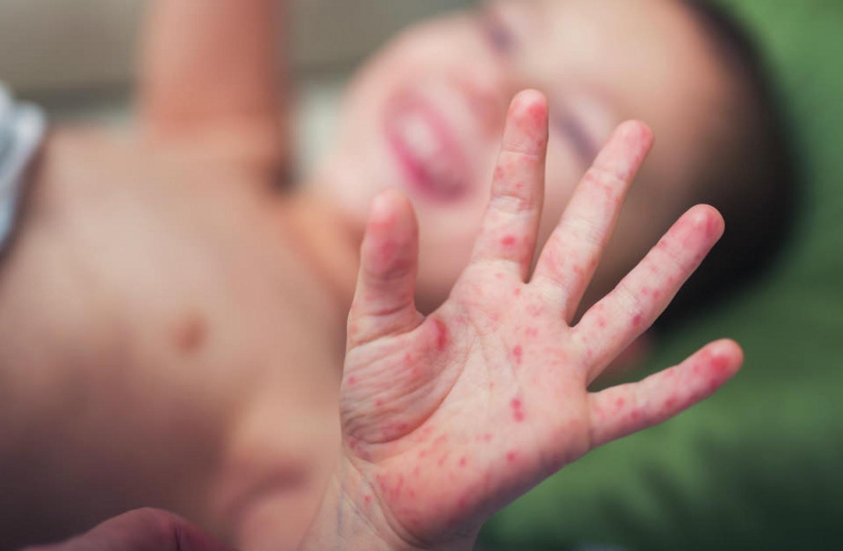 Thêm một trường hợp bé 17 tháng tử vong vì tay chân miệng 1