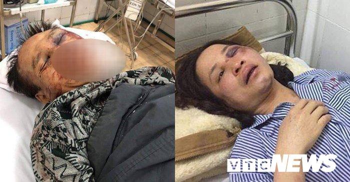 Xét xử cựu đại tá công an cùng con trai đánh anh ruột đến chết vì tranh chấp từ đường 1