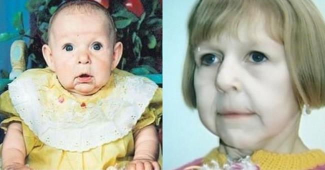 Chào đời với gương mặt già nua bị bố ruột chối bỏ, cô gái tự tạo nên kỳ tích cho đời mình, đánh bại mọi chẩn đoán y khoa 1
