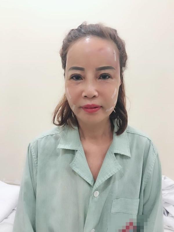 Cô dâu 62 tuổi chịu đau đớn để làm điều này, tuyên bố: Quyết đánh liều để đẹp hơn nữa 4