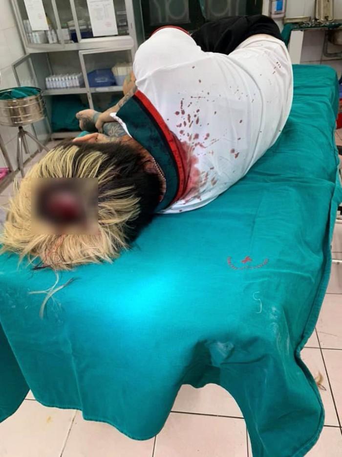 Hình ảnh Cả nhà hot girl xăm trổ bị tấn công nhập viện vì mâu thuẫn trong lúc giao hàng số 2