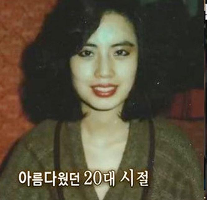 Thảm họa dao kéo Hàn Quốc Han Mi Ok: Điên cuồng thẩm mỹ, tự tiêm dầu ăn bẩn, silicon 2