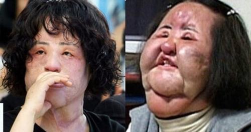 Thảm họa dao kéo Hàn Quốc Han Mi Ok: Điên cuồng thẩm mỹ, tự tiêm dầu ăn bẩn, silicon 3